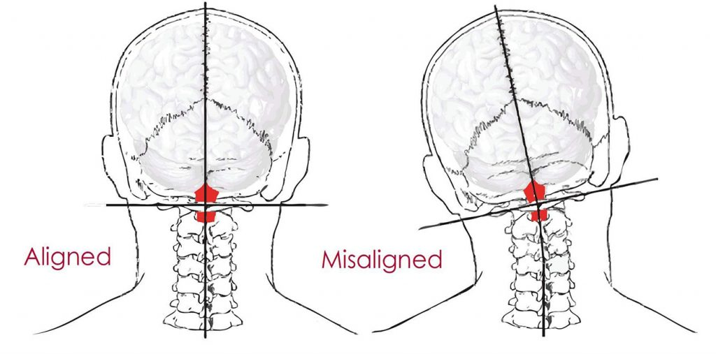 Atlas Misalignment Subluxation Orthospinology Chiropractic