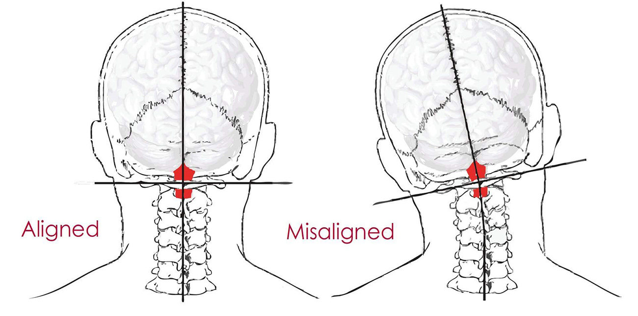 Atlas Misalignment Subluxation Orthospinology Chiropractic