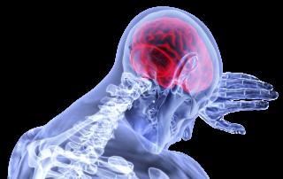 CCJ Brain Neck Head Pain